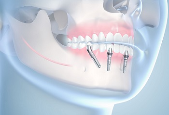 zybnue_implanty