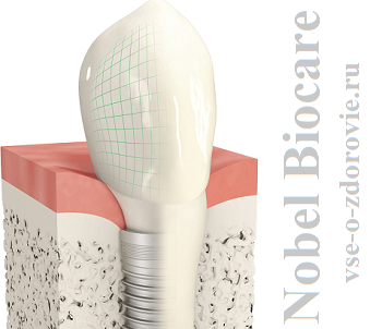 implant_nobel_biocare
